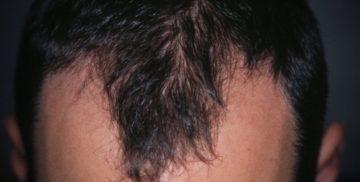 alopecia-androgenetica_800x521